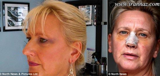 خارج شدن یک دکمه از بینی این زن پس از 35 سال!