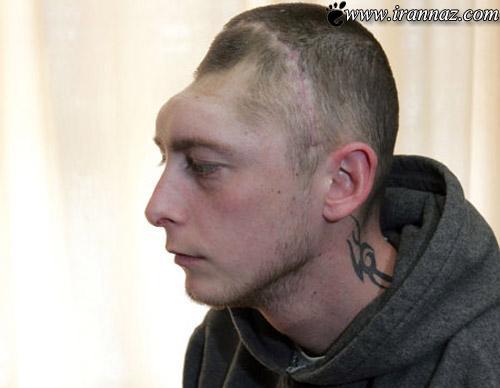 زندگی بسیار عجیب این پسر با کله نصف شده! (عکس)