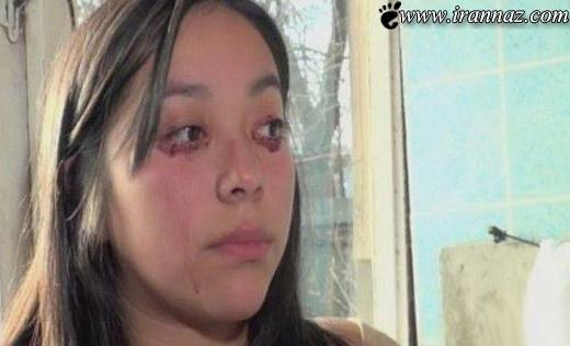 زندگی عجیب و کابوس مانند این دختر 20 ساله (عکس)