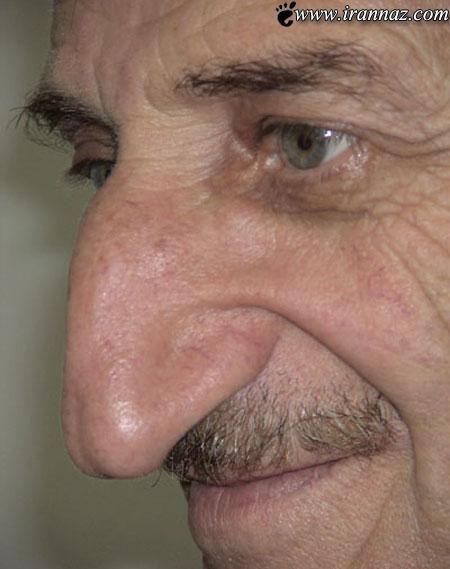 یک مرد ترک رکورد دار بزرگترین بینی دنیا شد!! (+تصاویر)