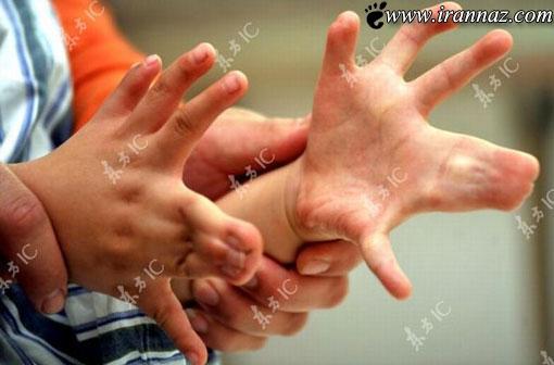 پسر شش ساله عجیبی که 30 انگشت دارد! (+تصاویر)