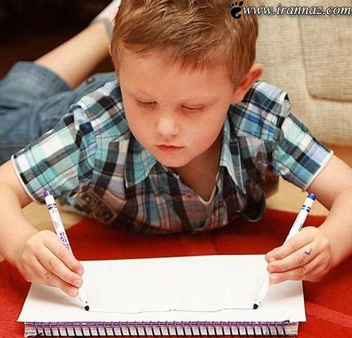این پسر 4ساله و عجیب دستهای آیینه ای دارد (عکس)