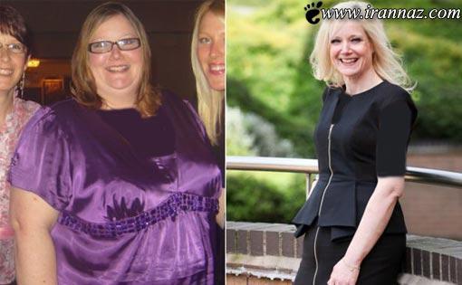 چهره و اندام زنی جوان پس از کاهش وزن 100 کیلویی!