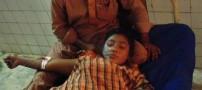 پاشیدن اسید بر روی این خانم بازیگر 18 ساله!! (عکس)