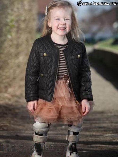 دختر بچه ای زیبا اما با پاهای قورباغه ای شکل (عکس)
