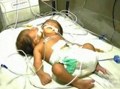 تولد عجیب و غریب نوزادی با یک بدن و دو سر (عکس)