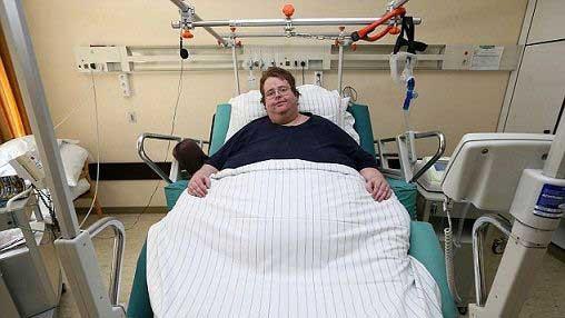 دردسر این مرد به خاطر چاقی بیش ار حدش (عکس)