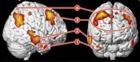 آیا تابحال اسکن مغز یک عاشق را دیده اید؟ (عکس)