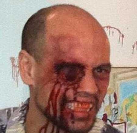 اتفاقی ناگوار که این مرد را شبیه خون آشام ها کرد!!