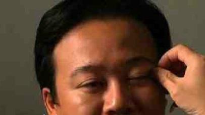 جراحی های بسیار عجیب و مسخره در چین (عکس)