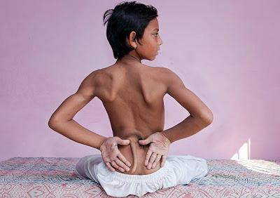 این پسر به خاطر داشتن دم خدای هندوها شد (عکس)