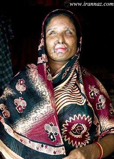 مردی که همسرش را با اسید سوزاند و با او ازدواج کرد!