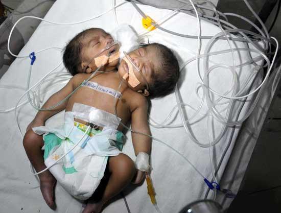 به دنیا امدن یک نوزاد غیر طبیعی در هند (عکس)
