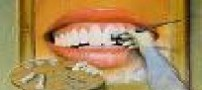 جنس دندان ها و جرمگیری