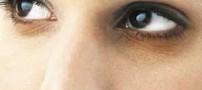 ده راه درمان سیاهی دور چشم