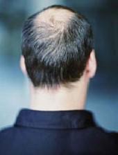 ارتباط استرس با ریزش مو