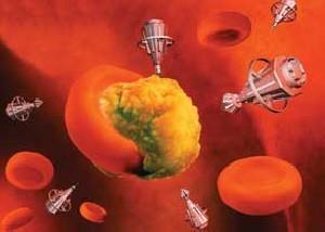 تشخیص محل دقیق سرطانها توسط نانوذرات