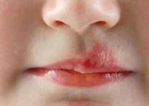 ویروس تب خال از راه تنفس وارد بدن میشود
