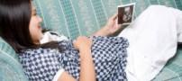 نابود کردن لک دوران بارداری