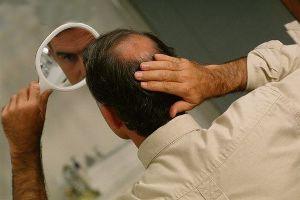 آیا قطره رز ماری بر رشد مو تاثیری دارد؟