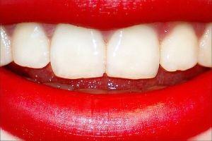 رابطه رنگ دندانها با بیماریها