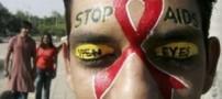 علائم بیماری ایدز HIV