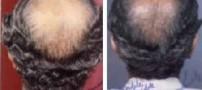 عوامل تشدید كننده ریزش مو