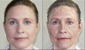 برطرف کردن چینوچروکهای پوست صورت