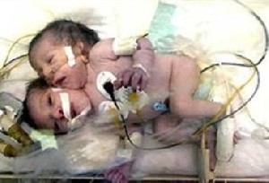 تولد نوزادی با یک بدن، دو دست، دو پا اما با دو سر!!