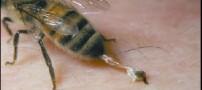 درمان بیماری ها با نیش زنبور
