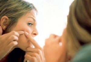 عوامل تشدید کننده و درمان جوش جوانی یا آکنه