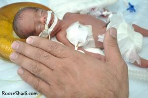 تولد نوزادی به اندازه کف دست!