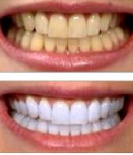 با زردی دندان چه کنیم؟
