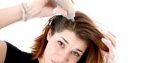 دلیل ریزش موی منطقهای چیست؟