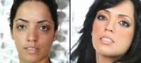رفع لکه های صورت با موادی طبیعی