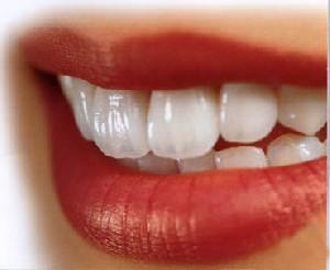 غذاهایی که دندانها را رنگی میکنند
