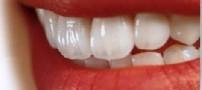 دلیل تشکیل پلاک روی دندان