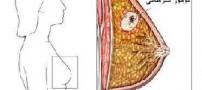 5 توصیه غذایی برای پیشگیری از سرطان سینه