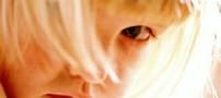 پذیرفتن لکنت کودک راهی برای کمک به درمان آن