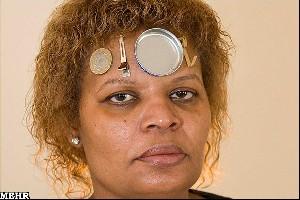 زنی که فلزات را به خود جذب می کند