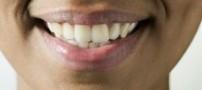 آیا مسواک زدن برای جلوگیری از پوسیدگی دندان کافی است؟