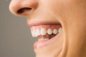 چه نقاطی از دندان مستعد پوسیدگی هستند؟