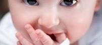 بیماری زردی در نوزادان