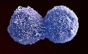 سرطان ریه علایم و نشانه ها