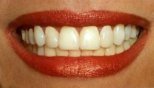 اهمیت جرم گیری دندان ها