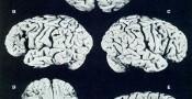 مغز آلبرت انشتین همچنان یکی از موضوعات جالب !!