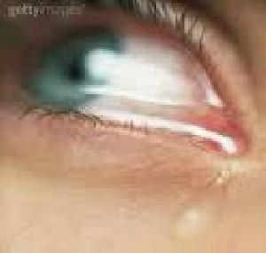 حقایقی درباره گریه