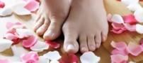 آیا پاشنه پاهایتان ترك خورده است؟