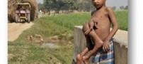 کودک بسیار عجیب هندی با هشت دست و پا