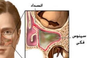 آیا بیماری سینوزیت درمان دارد؟
